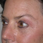After - Upper and Lower Eyelids