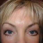 After- Lower Eyelids, Transcutaneous Approach