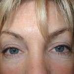 Before - Lower Eyelids, Transcutaneous Approach