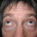 Before - Lower Eyelids, Transconjunctival Approach