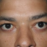 After - Lower Eyelids
