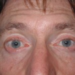 After - Lower Eyelids, Transconjunctival Approach
