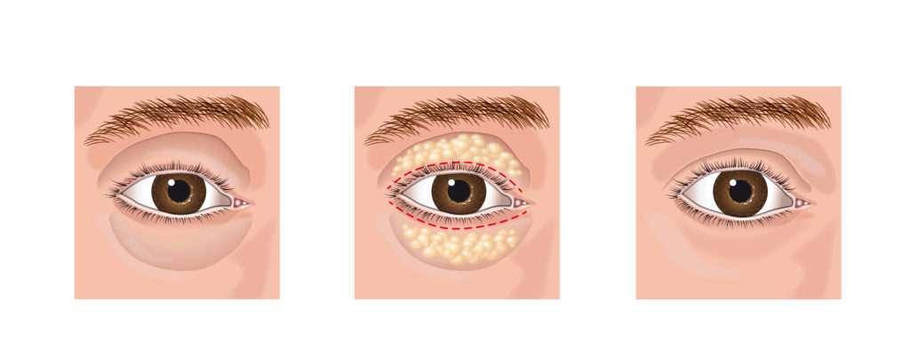 aesthetic blepharoplasty eye