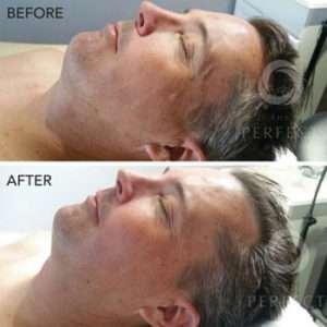 Facial Skin Care - Chemical Peel