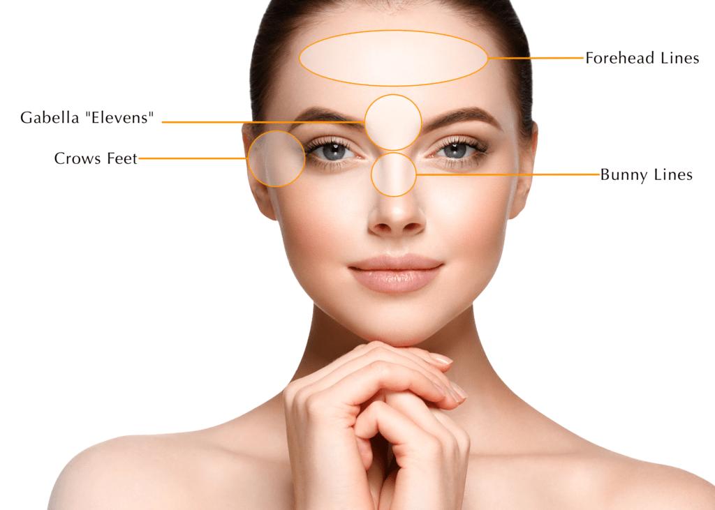 Facial Relaxer treatment areas