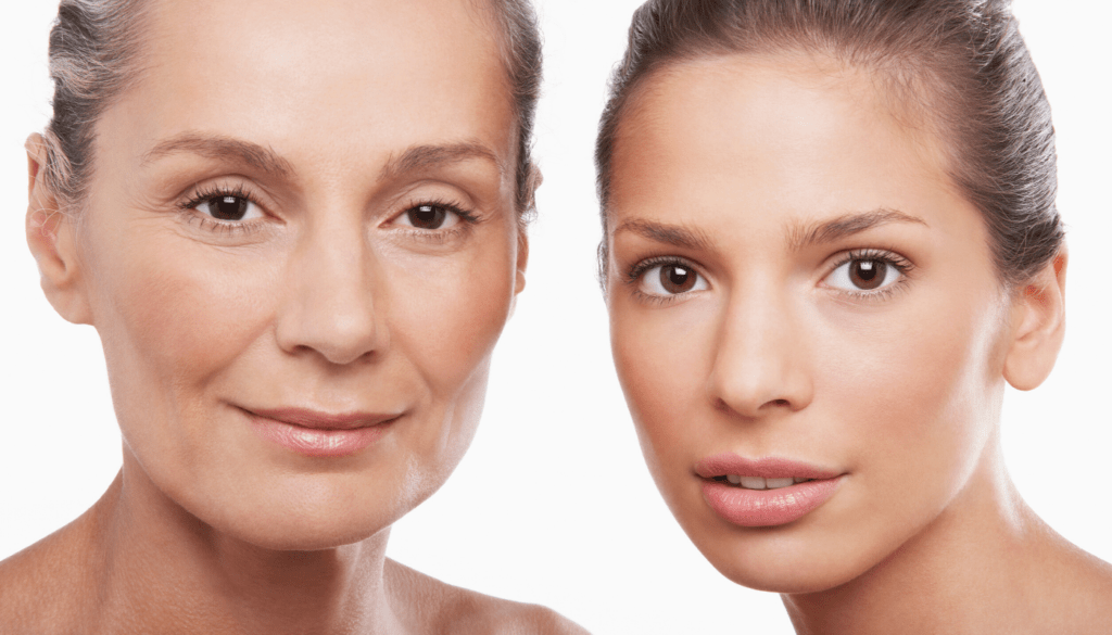 Botox® at any age, young or old - facial relaxers